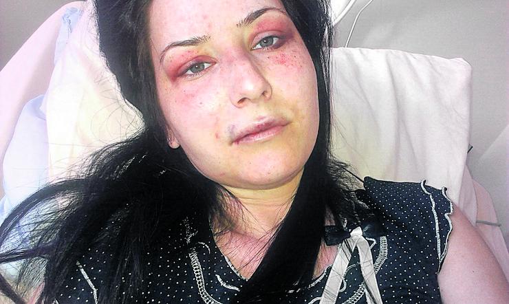 Tijana Sekulić Mučena i upucana u noge u blizini groblja u Surčinu
