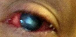 Ameba wyżerała jej oczy!