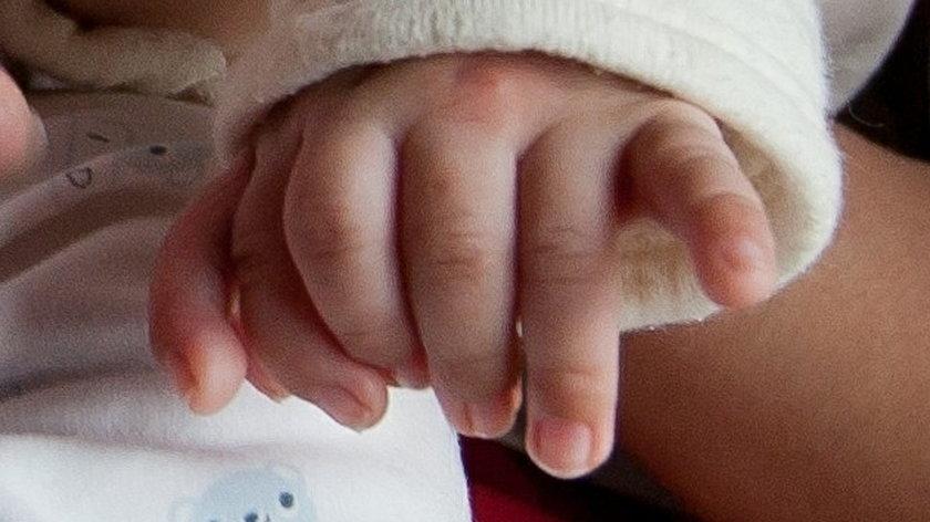 Ten maluszek urodził się z 31 palcami