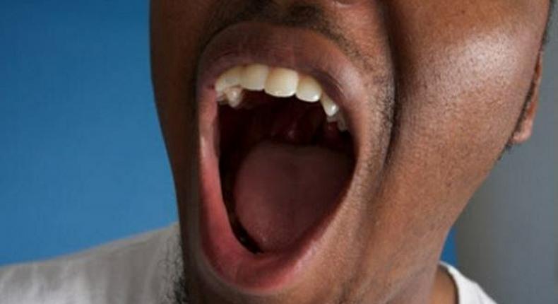 Bad breath (Leapfame)