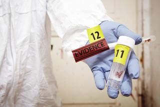 Prezes KRDL: Tylko metoda molekularna pozwala w 100 proc. potwierdzić zakażenie SARS-CoV-2