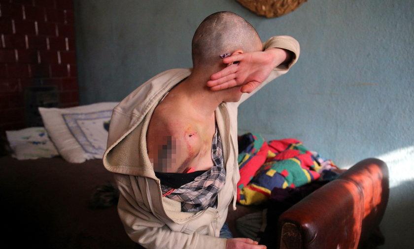 Tortury w Piotrkowie Trybunalskim. Zamknęli kobietę, ogolili jej głowę i dźgali widelcem. Jest areszt