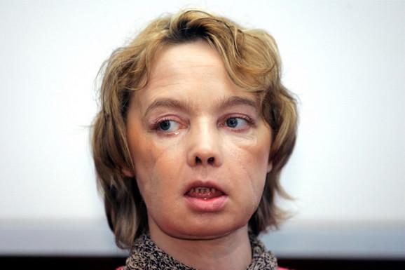 Izabel Dinoar nakon operacije
