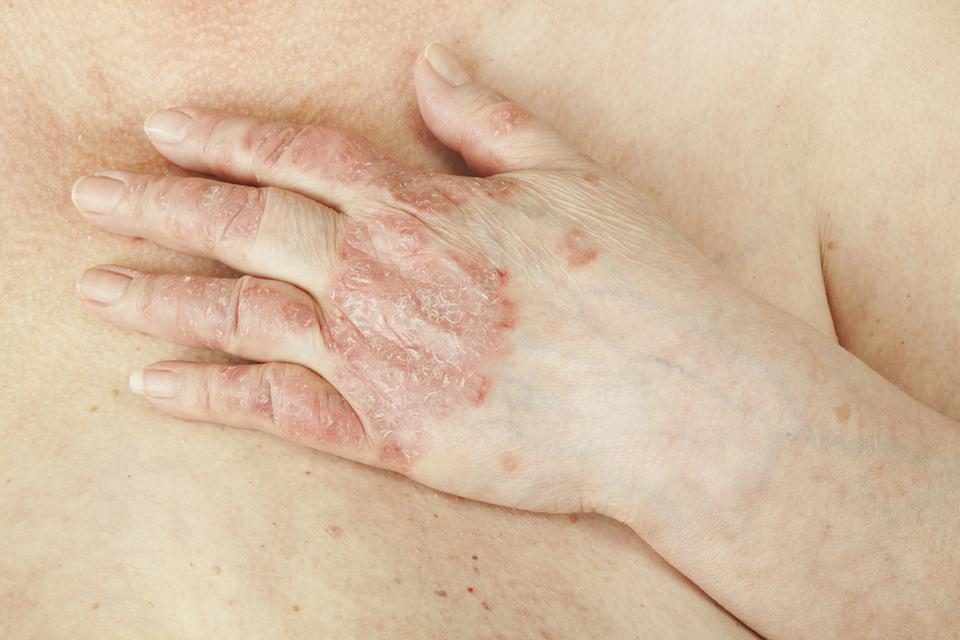 4. Ostropest pomaga w leczeniu łuszczycy
