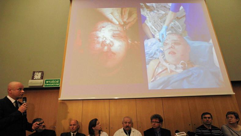 Przeszczep twarzy u młodej pacjentki z nowotworem. Prezentacja wyników operacji na konferencji w Centrum Onkologii w Gliwicach