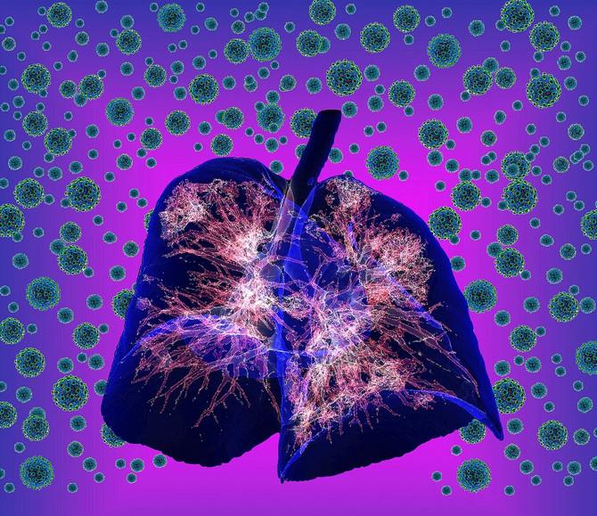 Kovid pneumonija