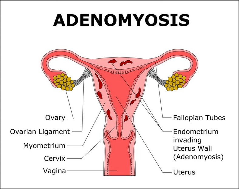 Adenomyosis is when tissue that lines the uterus is present inside the muscular wall of the uterus [Credit: Faculty of Medicine- University of Queensland]