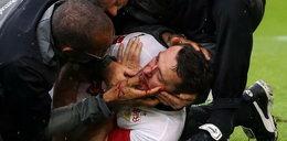 Koszmarna interwencja bramkarza. Piłkarz ma zmasakrowaną twarz