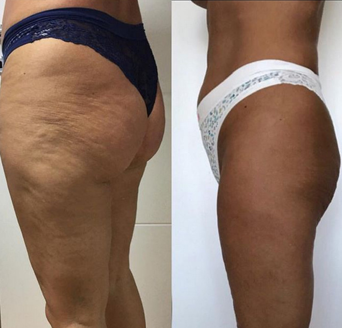 Pre i posle tretmana laserom