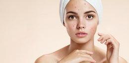 Tych rzeczy dermatolodzy nigdy nie nakładają na twarz. Lepiej ich unikaj