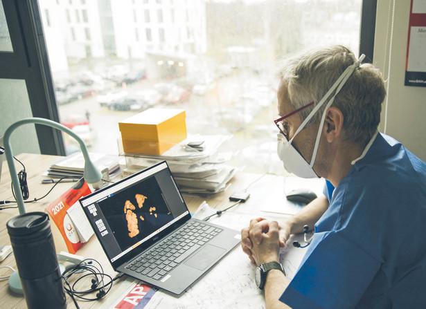 Dr Wojciech Feleszko opowiada o 12-letnim pacjencie. Na trójwymiarowym obrazie widać tylko zdrowe fragmenty jego płuc – lewego prawie nie ma. Na szczęście chłopiec wyzdrowiał