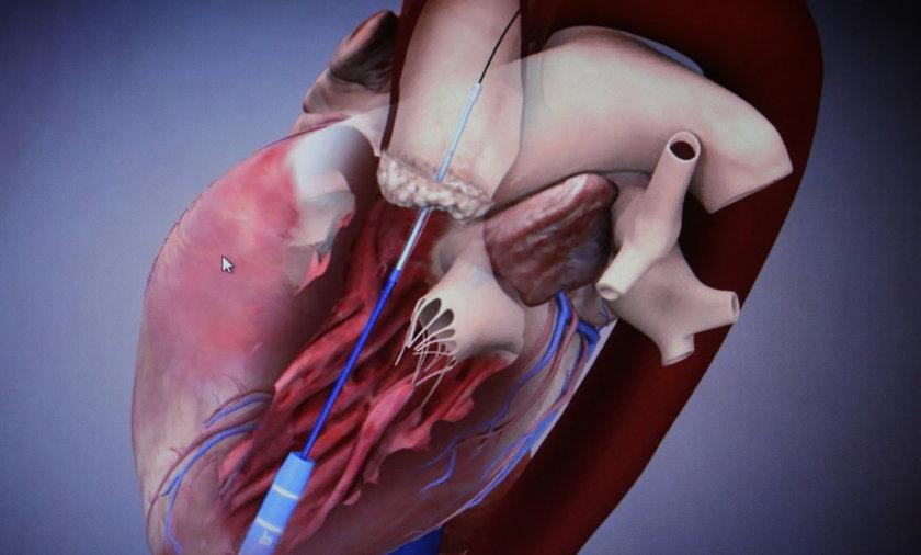 wszczepienie zastawki aorty