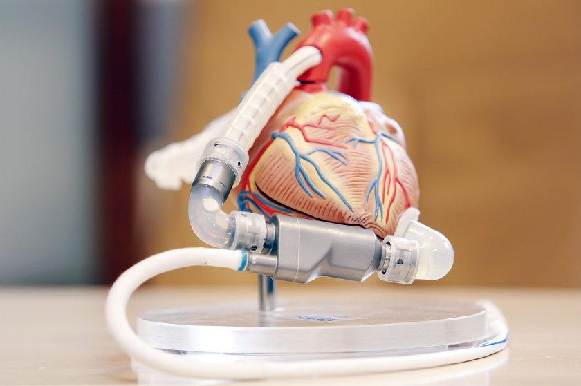 Model serca i pompy, którą wszczepiono Patrykowi