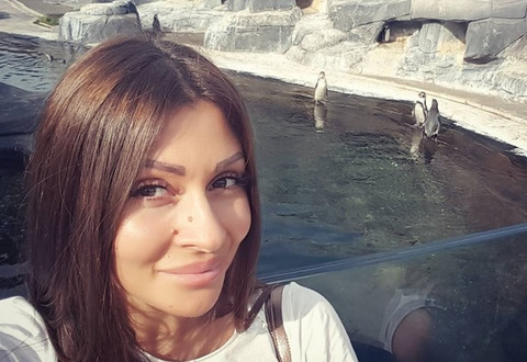 Zorica Dukiće operisala nos: Evo kako danas izgleda! FOTO