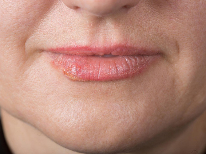 Sve što vam treba imate u kuhinji: Prirodni lek za herpes