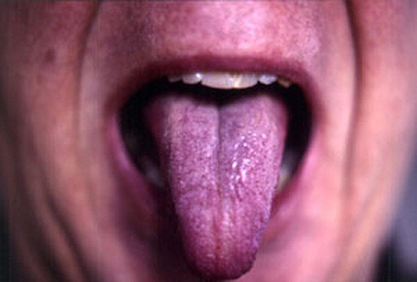 Ciemnoróżowy lub fioletowy język