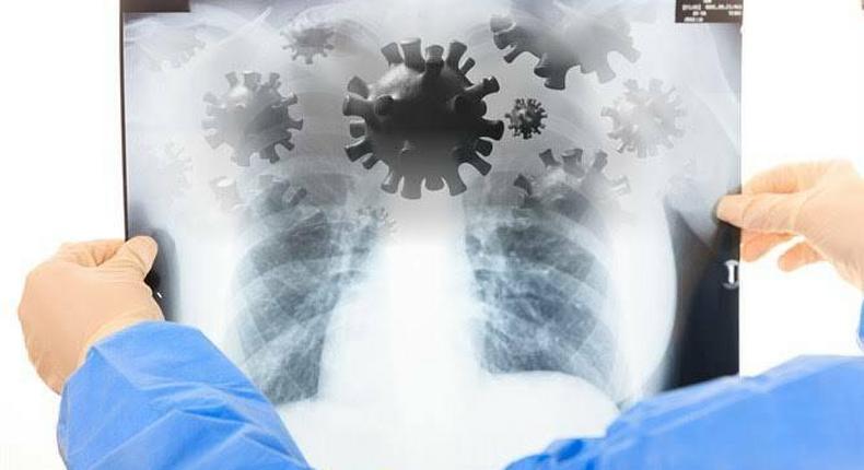 Tests of KHN Patient suspected to have Coronavirus released