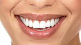 Jak samemu można wybielić zęby?