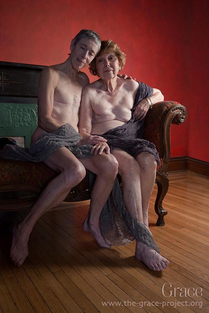 Prelepe i jedinstvene: Majka i ćerka, isti ožiljci i isti BRCA gen