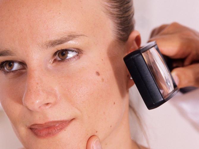 BESPLATAN PREGLED KOŽE: Proverite mladeže, broj obolelih od melanoma drastično raste