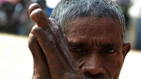 W Chinach trędowaci wciąż żyją poza społeczeństwem
