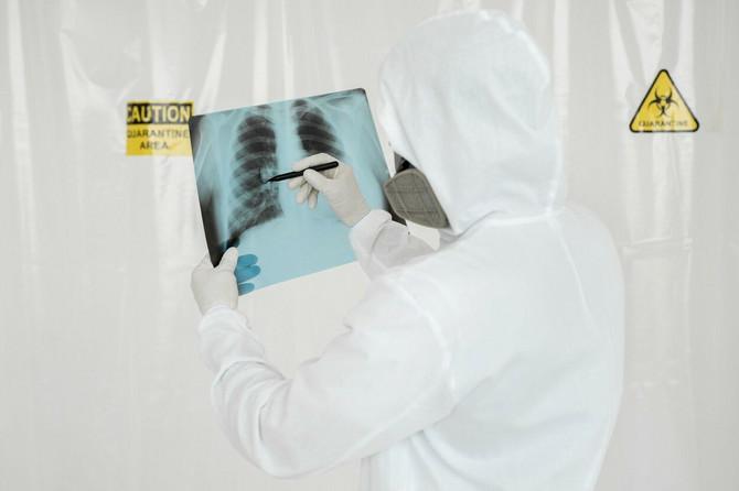 Pluća pacijenta sa KOVID-19