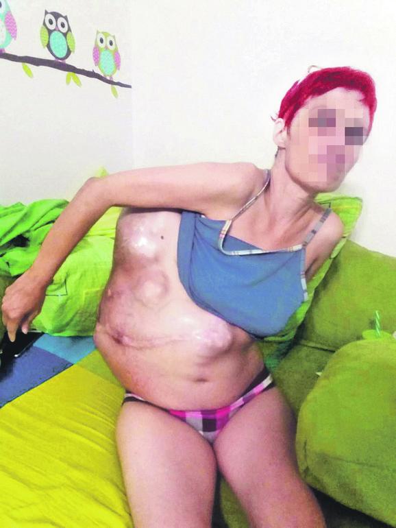Žena je trpela velike bolove i teško se kretala
