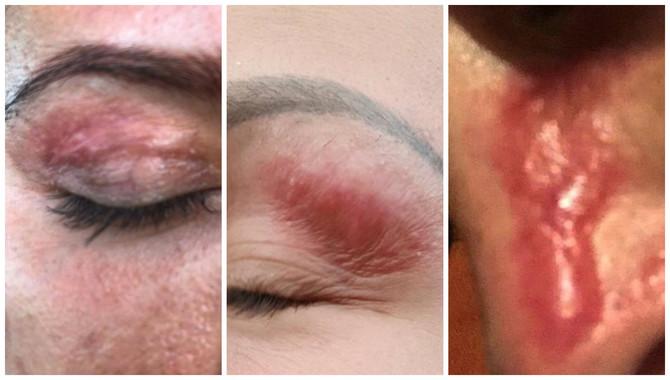 Žene se masovno žale na nestručan rad u jednom beogradskom kozmetičkom salonu i ožiljke od istog