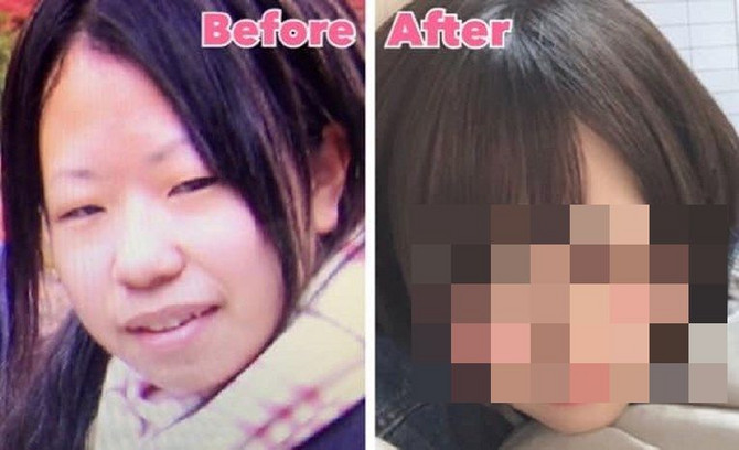Mišiki pre i posle transformacije