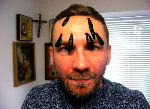 Przemek Kossakowski w trakcie nietypowej hirudynoterapii