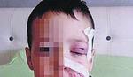 STRAŠNO Pas izujedao dečaka (4) po licu, otac ga otrgao iz čeljusti