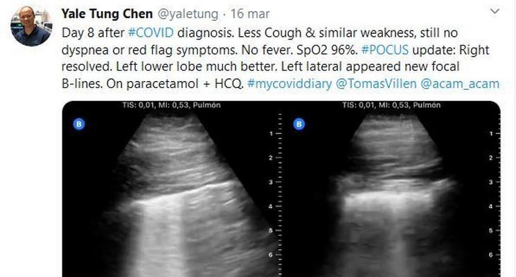 Доктор Йель Тунг Чен описывает течение болезни COVID-19