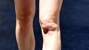 Czyje to kolana?