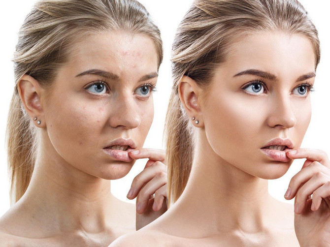 Razotkrili smo najveće mitove o lepoti: Dermatolog i frizer kažu u ovo treba verovati