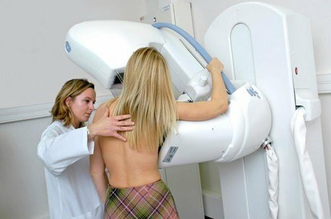 Odziv na skrining preglede raka grlića materice je između 60 i 70 odsto, a u slučaju preventivne mamografije taj procenat je svega 30 odsto. Kada je u pitanju  rak debelog creva, odziv je 60 odsto