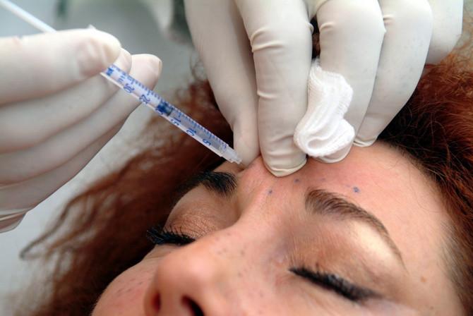 Ubrizgavanje botoksa