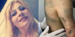 Ciotka torturowała bratanicę. 7-latce musieli amputować rękę