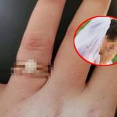 """Buduća mlada objavila sliku BURME - na Fejsu joj se BRUTALNO PODSMEVALI! """"Iskopaćeš oko nekome!"""" (FOTO)"""