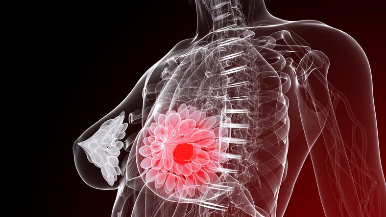 Kobiety po 65. roku życia rzadziej są kierowane na radioterapię; obawy przed powikłaniami