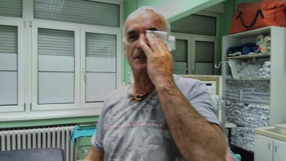 Povređeni vozač u čiji auto se zakucao Mitić