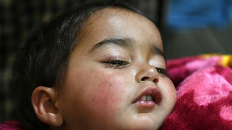 Hiba Jan was hit by a pellet fired from a pump-action gun in Kashmir