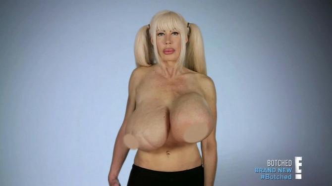 Iako izgledaju uznemirujuće, Elizabet se dopada veličina njenih grudi