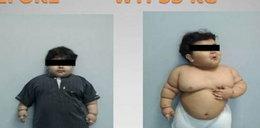 Zmniejszyli żołądek 2-letniemu dziecku. Ważyło 33 kilogramy!