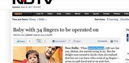To dziecko ma 34 palce! Rodzice są szczęśliwi