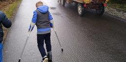Chłopiec o kulach zawstydził turystów. Jest niesamowity