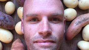 Australijczyk przez rok jadł tylko ziemniaki. Schudł ponad 50 kg