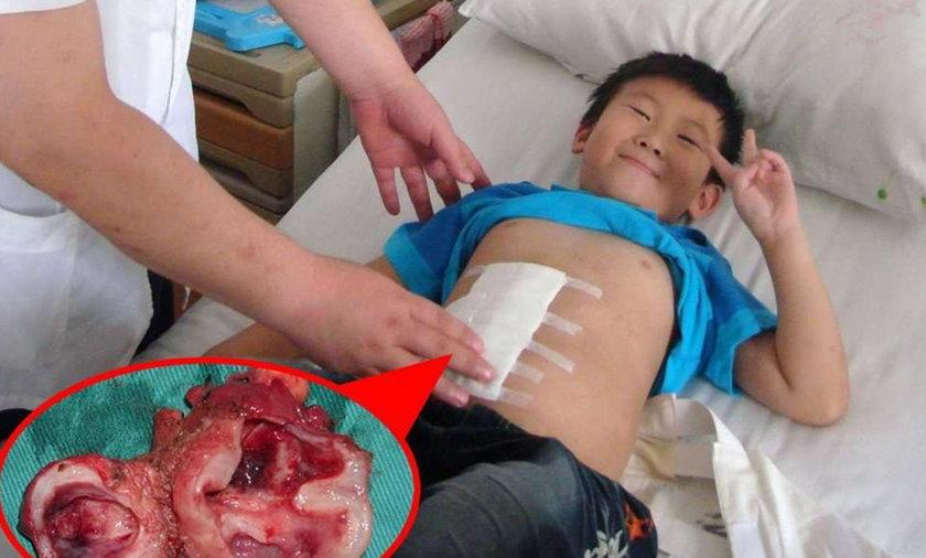 Chłopiec z trzema żołądkami