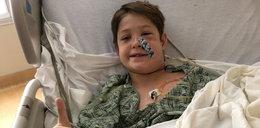 10-latek spadł głową na szpikulec do mięsa. Wydarzył się cud