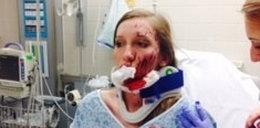 Poroże jelenia zmasakrowało jej twarz