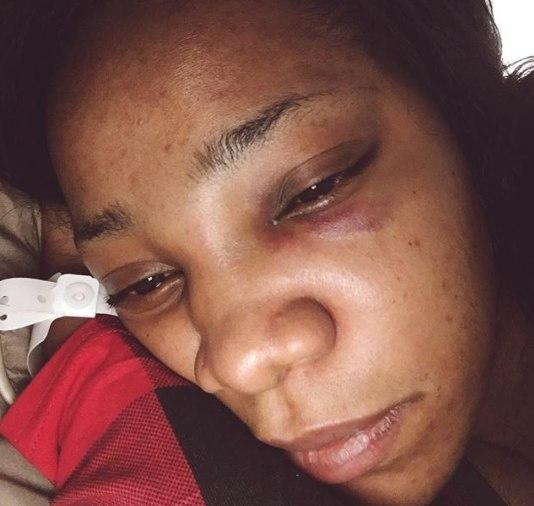 Juliet Mgborukwe shows a photo of her bruised face [Instagram/JulietMgborukwe]
